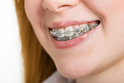 unterschied zahnbehandlung und zahnersatz